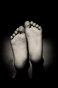 Symptoms of Trench Foot Image 1