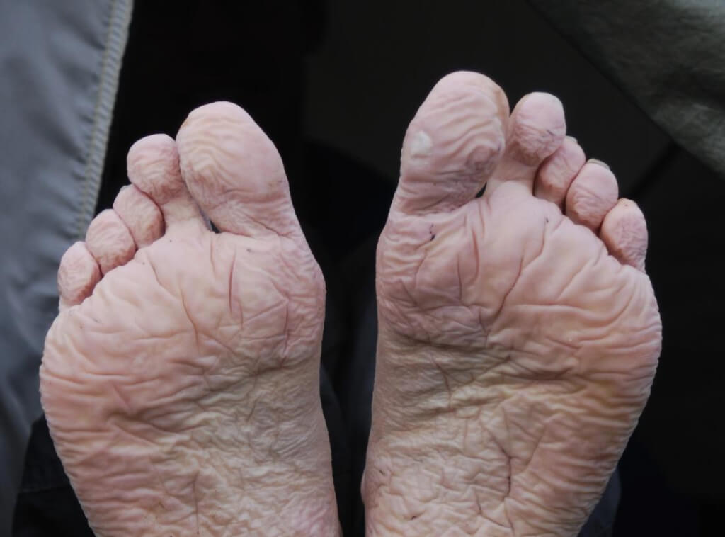 recognizing the symptoms of trench foot - if left untreated