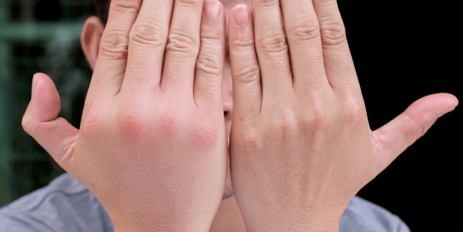 the pros and cons of hiking poles - swollen hands